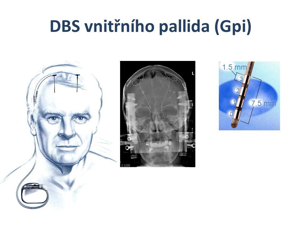 DBS vnitřního pallida (Gpi) 7.5 mm 0 1 2 3 1.5 mm