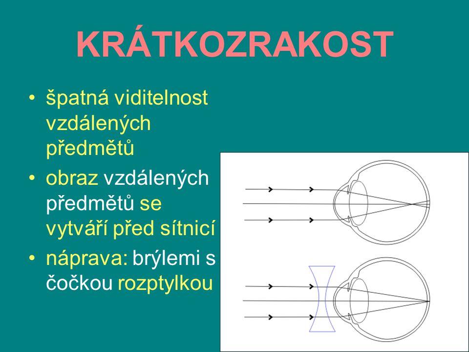 DALEKOZRAKOST špatná viditelnost blízkých předmětů obraz blízkých předmětů se vytváří za sítnicí náprava: brýlemi s čočkou spojkou