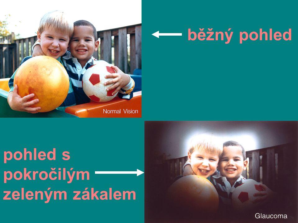 ASTIGMATISMUS vada způsobující nepřesné zaostření světla na sítnici ( často společně s krátkozrakostí nebo dalekozrakostí) rohovka nemá pravidelný kulový tvar INTERNETOVÝ ODKAZ NA UKÁZKY ASTIGMATISMU