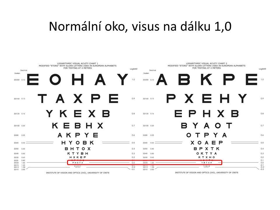 Normální oko, visus na dálku 1,0