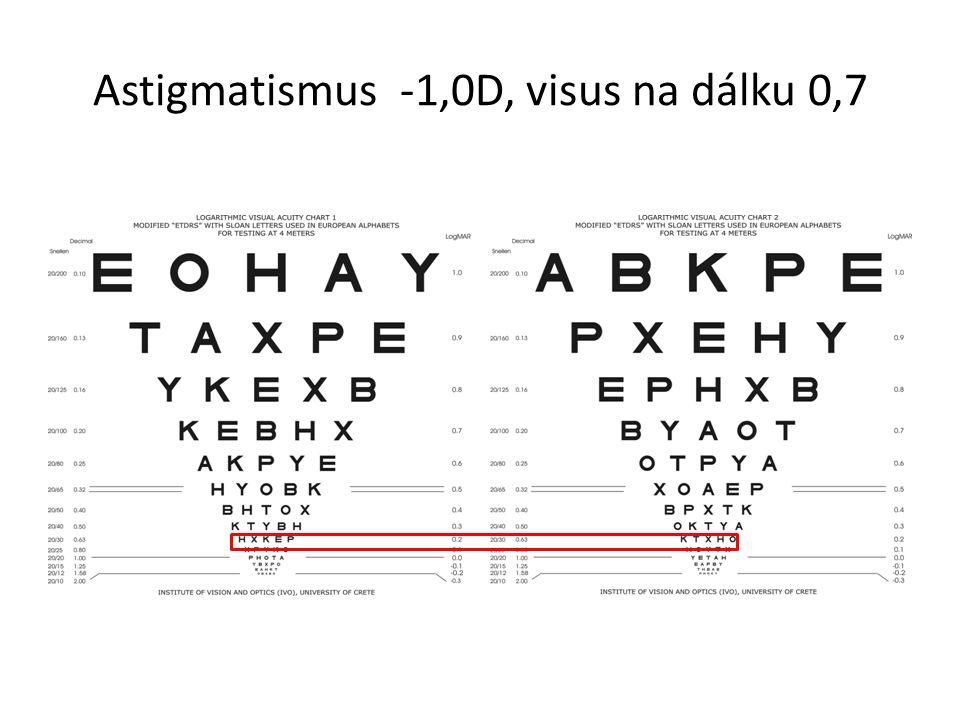 Astigmatismus -1,0D, visus na dálku 0,7