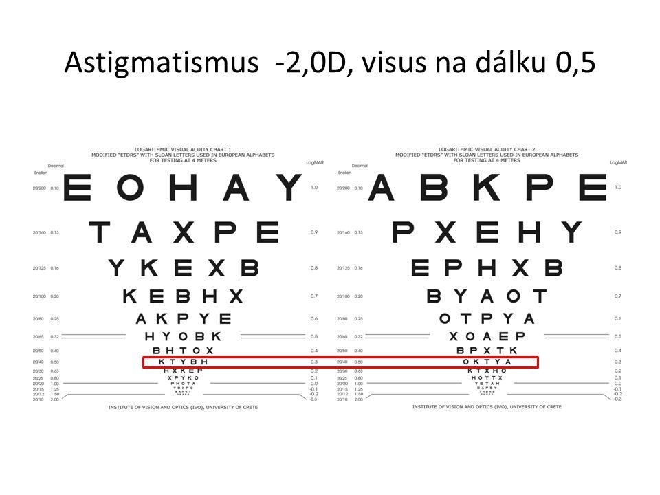 Astigmatismus -2,0D, visus na dálku 0,5