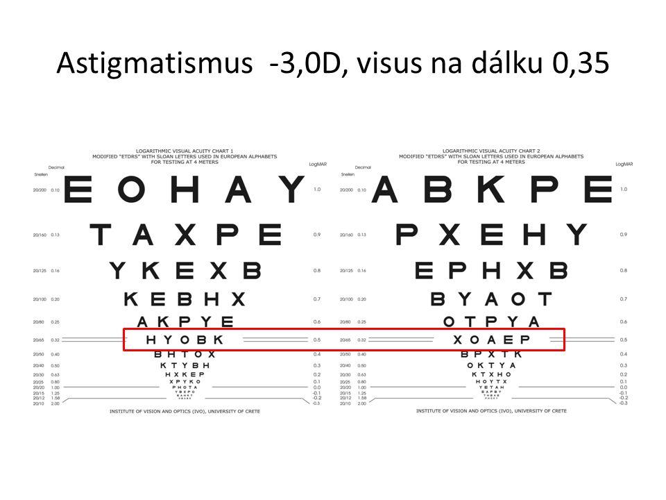 Astigmatismus -3,0D, visus na dálku 0,35