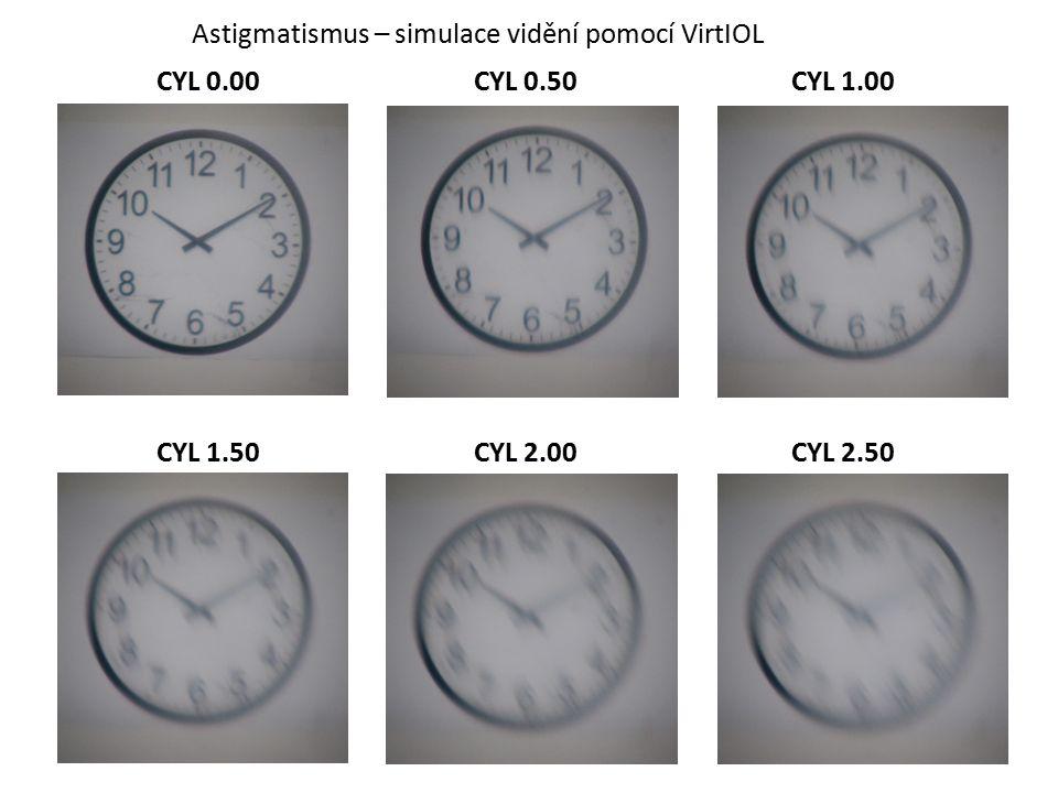 Astigmatismus – simulace vidění pomocí VirtIOL CYL 0.00CYL 0.50CYL 1.00 CYL 1.50CYL 2.00CYL 2.50