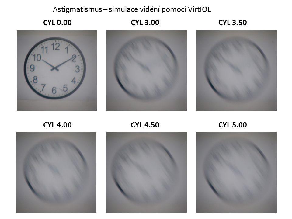 Astigmatismus – simulace vidění pomocí VirtIOL CYL 0.00CYL 3.00CYL 3.50 CYL 4.00CYL 4.50CYL 5.00
