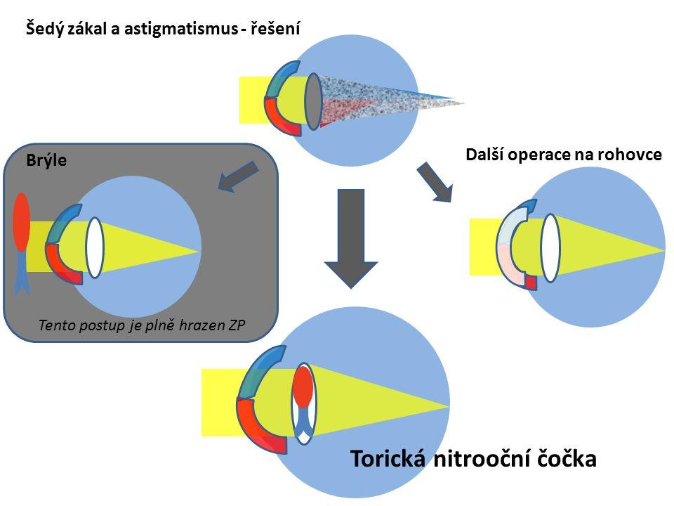 Šedý zákal a astigmatismus - řešení Torická nitrooční čočka Další operace na rohovce Brýle Tento postup je plně hrazen ZP