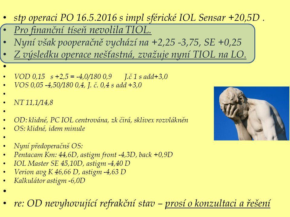 stp operaci PO 16.5.2016 s impl sférické IOL Sensar +20,5D.