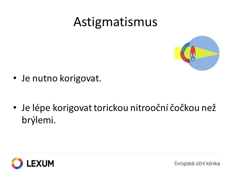 Astigmatismus Je nutno korigovat. Je lépe korigovat torickou nitrooční čočkou než brýlemi.