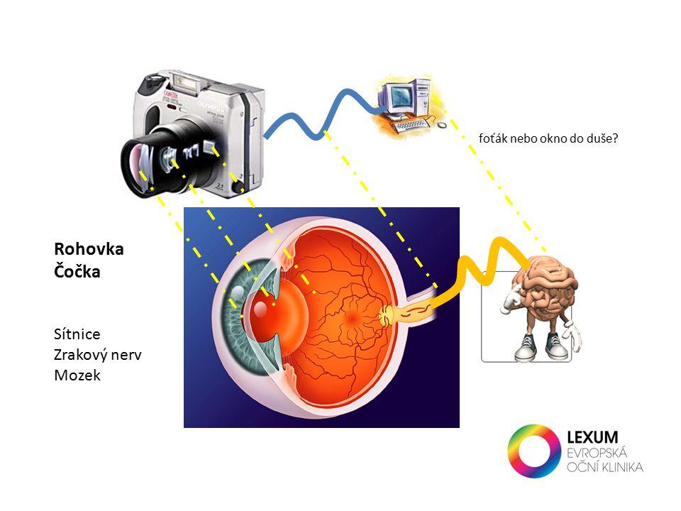 foťák nebo okno do duše Rohovka Čočka Sítnice Zrakový nerv Mozek