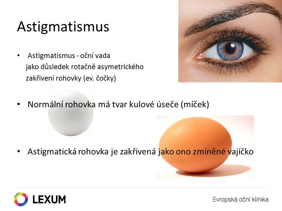 Astigmatismus Astigmatismus - oční vada jako důsledek rotačně asymetrického zakřivení rohovky (ev.
