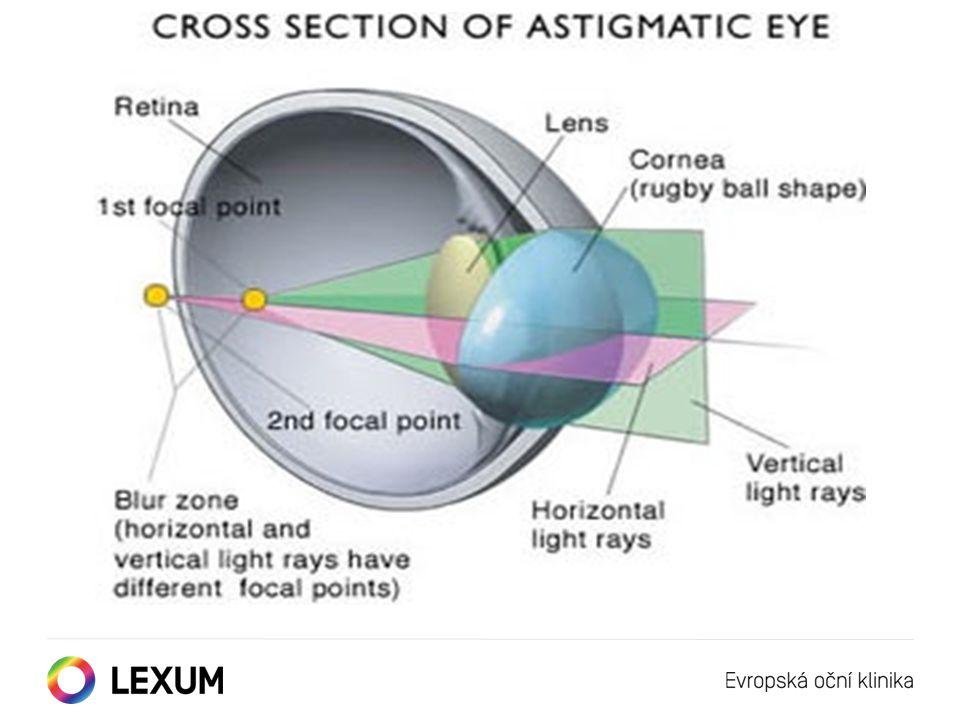 """Oko bez vady """"krátkozrakost (myopie) """"dalekozrakost (hypermetropie) """"astigmatismus - (minus) dioptrie + (plus) dioptrie Korekce refrakční vady oka"""