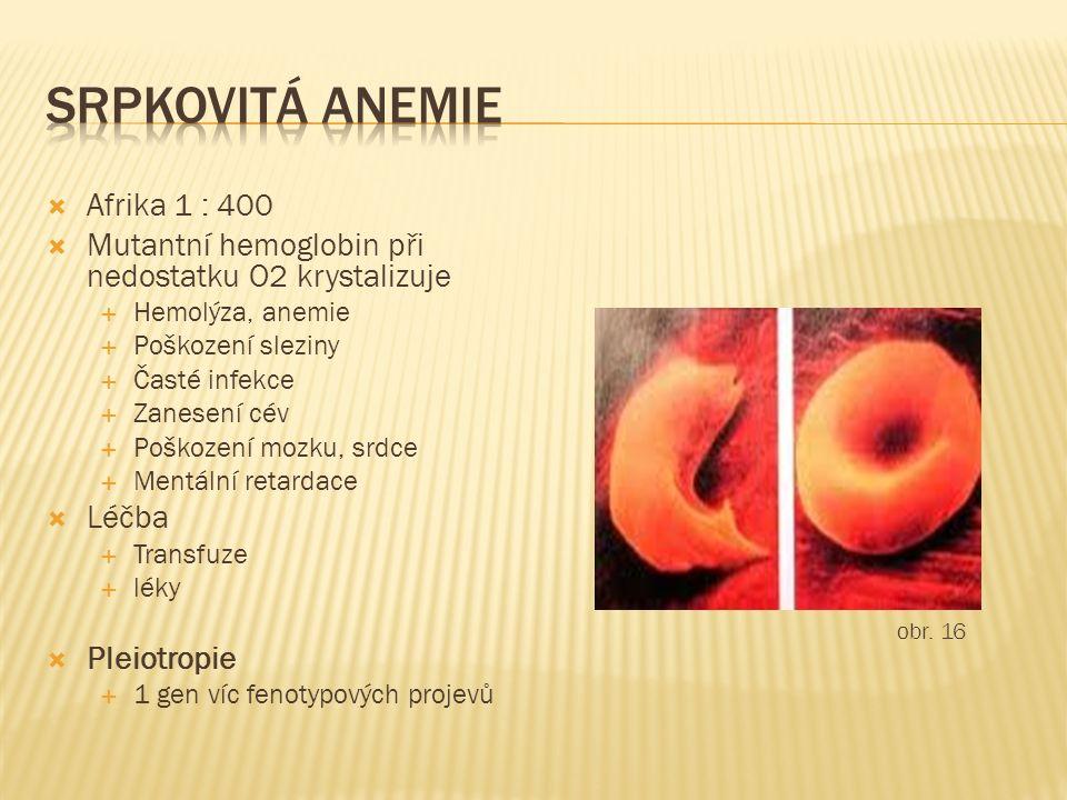  Afrika 1 : 400  Mutantní hemoglobin při nedostatku O2 krystalizuje  Hemolýza, anemie  Poškození sleziny  Časté infekce  Zanesení cév  Poškozen