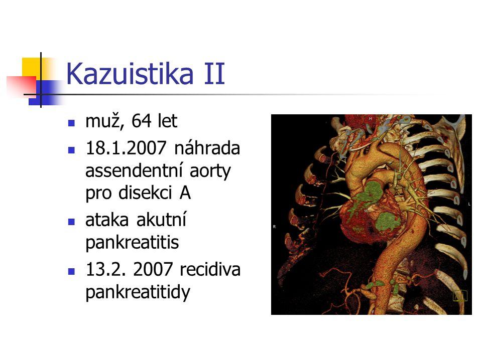 Kazuistika II muž, 64 let 18.1.2007 náhrada assendentní aorty pro disekci A ataka akutní pankreatitis 13.2.