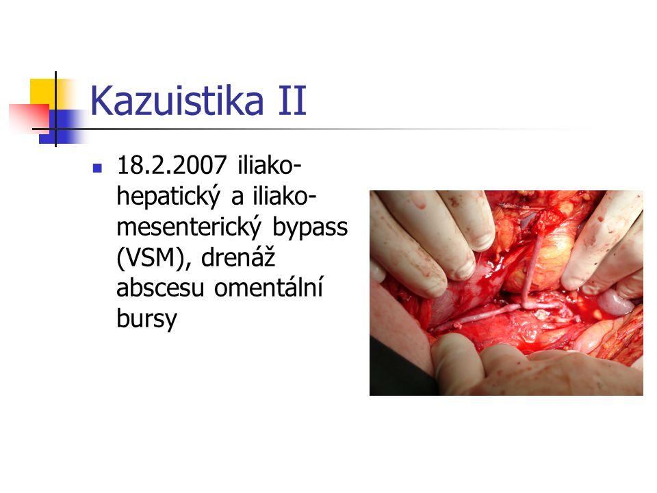 Kazuistika II 18.2.2007 iliako- hepatický a iliako- mesenterický bypass (VSM), drenáž abscesu omentální bursy