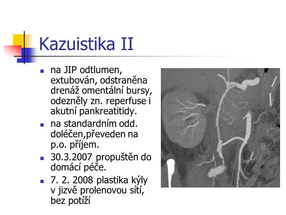 Kazuistika II na JIP odtlumen, extubován, odstraněna drenáž omentální bursy, odezněly zn.