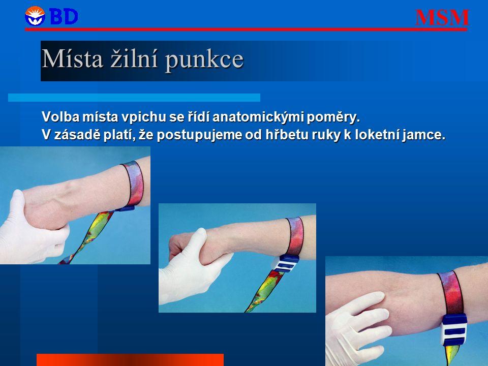 MSM 4 Místa žilní punkce Volba místa vpichu se řídí anatomickými poměry.
