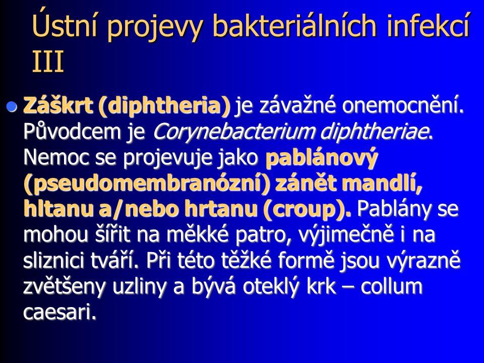 Ústní projevy bakteriálních infekcí III Záškrt (diphtheria) je závažné onemocnění.