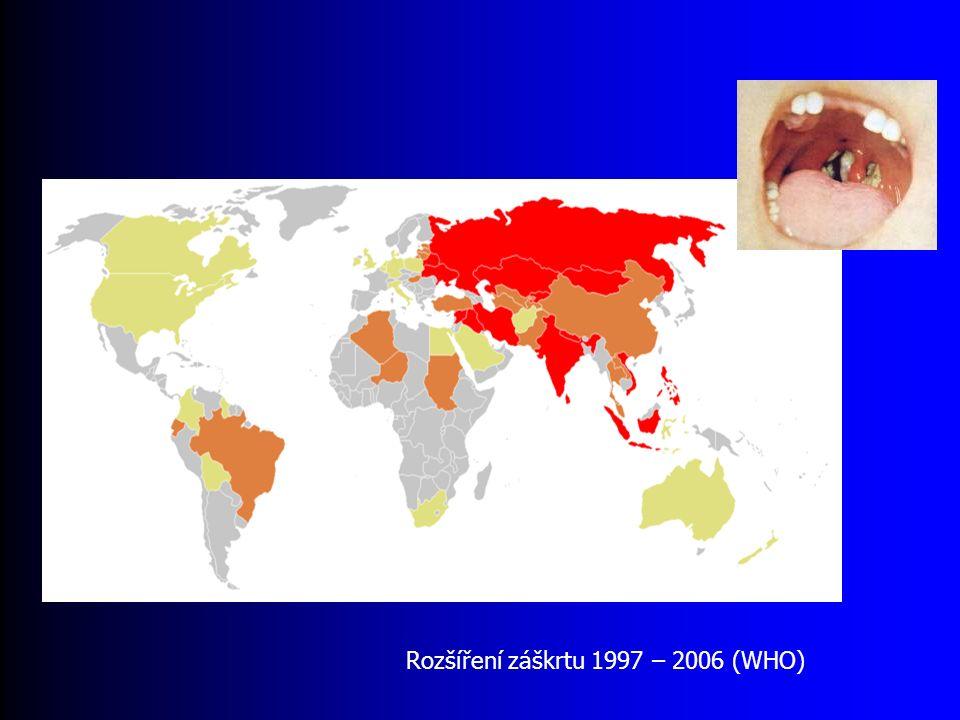 Rozšíření záškrtu 1997 – 2006 (WHO)