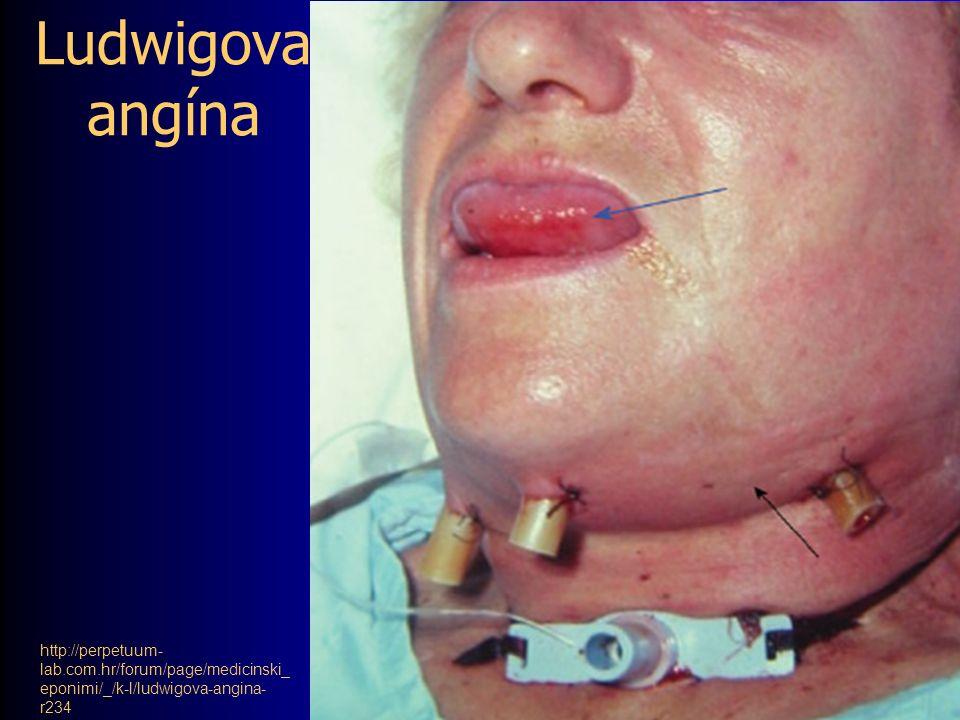 Ludwigova angína http://perpetuum- lab.com.hr/forum/page/medicinski_ eponimi/_/k-l/ludwigova-angina- r234