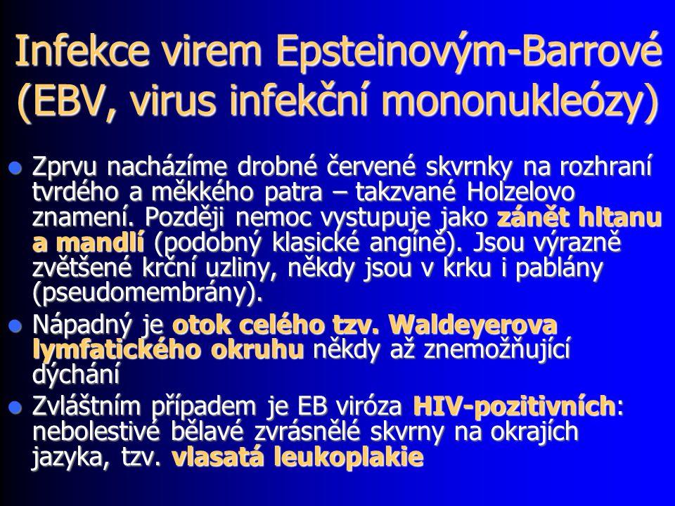 Infekce virem Epsteinovým-Barrové (EBV, virus infekční mononukleózy) Zprvu nacházíme drobné červené skvrnky na rozhraní tvrdého a měkkého patra – takzvané Holzelovo znamení.