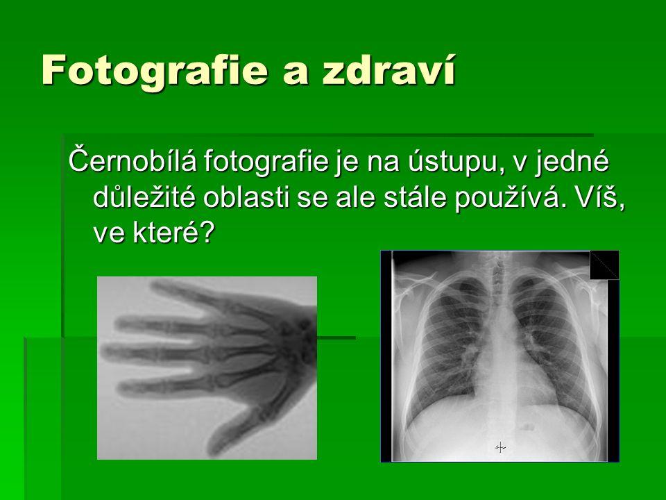 Fotografie a zdraví Černobílá fotografie je na ústupu, v jedné důležité oblasti se ale stále používá.