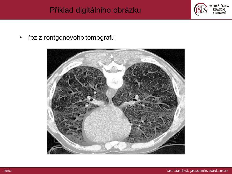 řez z rentgenového tomografu Příklad digitálního obrázku 20/62 Jana Štanclová, jana.stanclova@ruk.cuni.cz