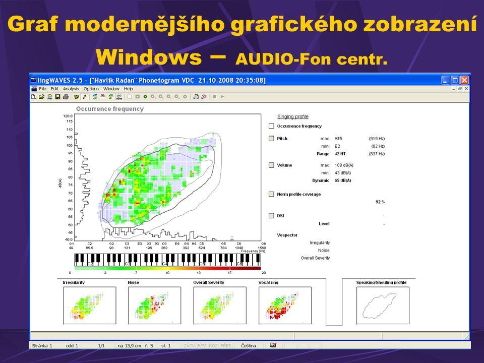 Graf modernějšího grafického zobrazení Windows – AUDIO-Fon centr.