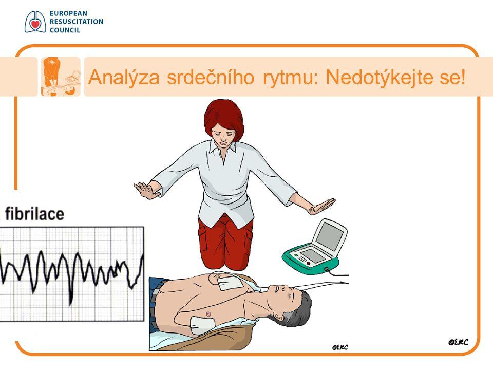 Analýza srdečního rytmu: Nedotýkejte se!