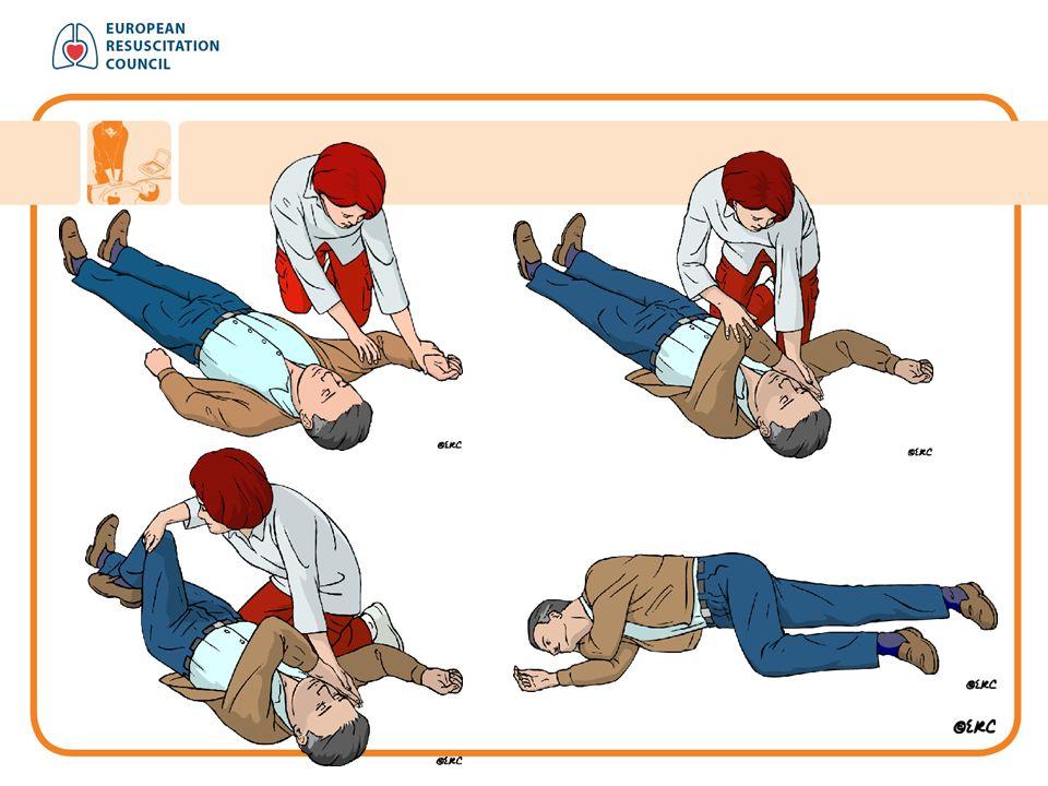 KPR u dětí Při srdeční zástavě u dítěte můžete použít stejný postup jako při resuscitaci dospělého Při srdeční masáži stlačujte hrudník alespoň do hloubky jedné třetiny jeho předozadního průměru