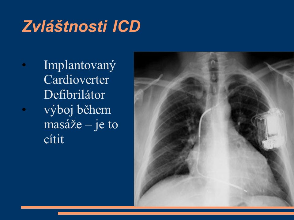 Zvláštnosti ICD Implantovaný Cardioverter Defibrilátor výboj během masáže – je to cítit
