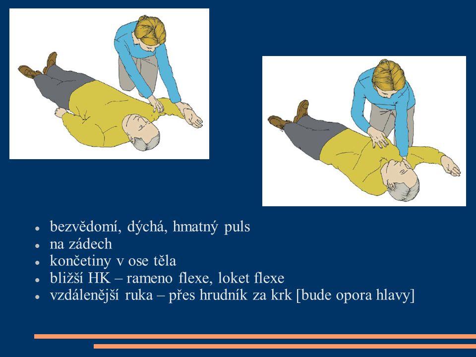 bezvědomí, dýchá, hmatný puls na zádech končetiny v ose těla bližší HK – rameno flexe, loket flexe vzdálenější ruka – přes hrudník za krk [bude opora