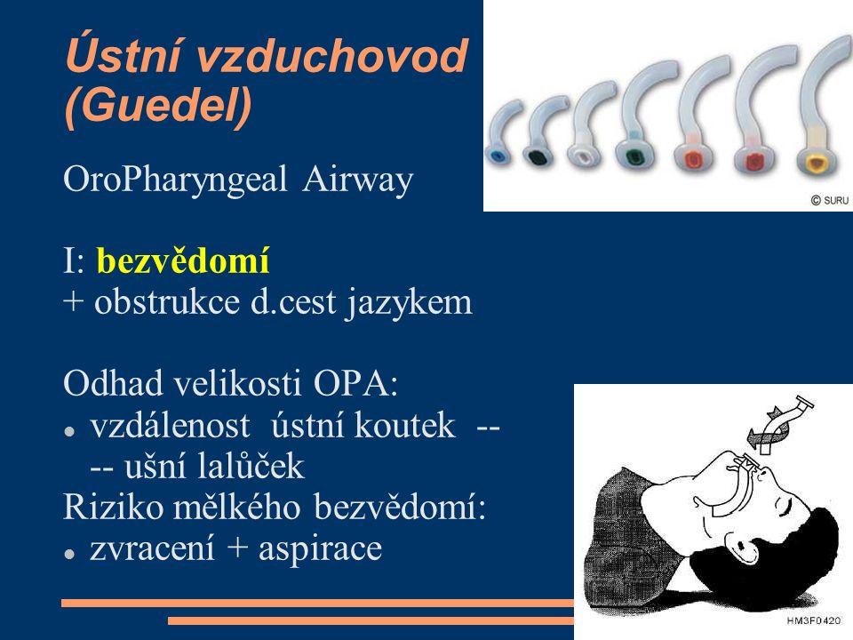 Ústní vzduchovod (Guedel) OroPharyngeal Airway I: bezvědomí + obstrukce d.cest jazykem Odhad velikosti OPA: vzdálenost ústní koutek -- -- ušní lalůček