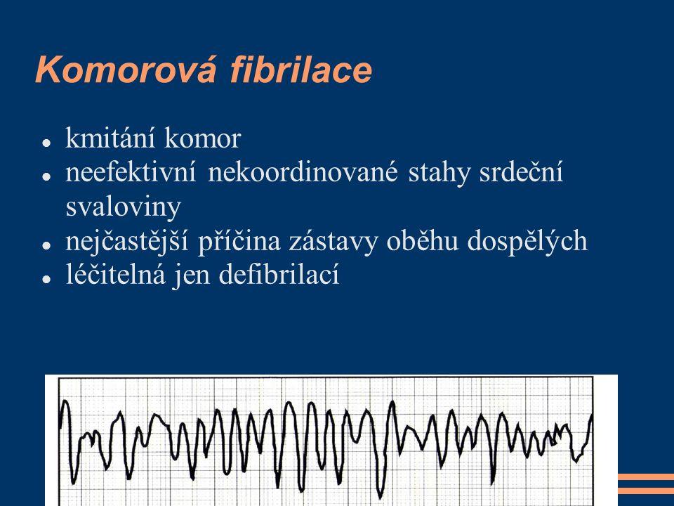 Komorová fibrilace kmitání komor neefektivní nekoordinované stahy srdeční svaloviny nejčastější příčina zástavy oběhu dospělých léčitelná jen defibril