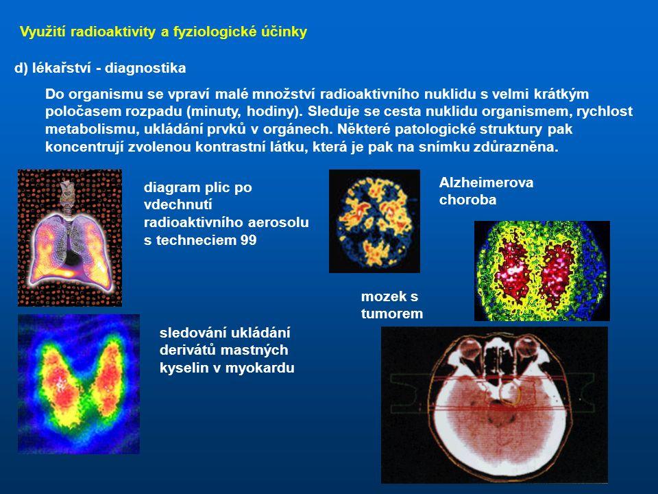 Využití radioaktivity a fyziologické účinky c) defektoskopie využívá se záření γ, případně neutronů, prozařují se velké vrstvy materiálu (silné ocelové odlitky, pyramidy)