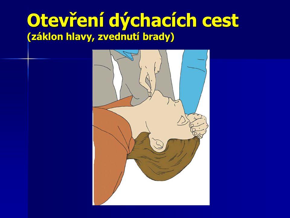 Otevření dýchacích cest (záklon hlavy, zvednutí brady)