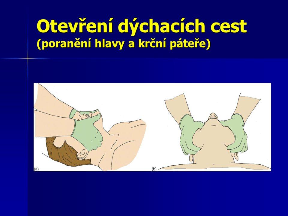 Otevření dýchacích cest (poranění hlavy a krční páteře)