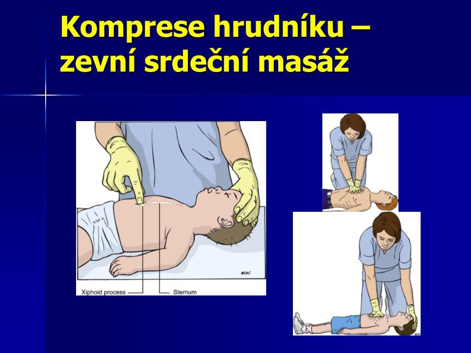 Komprese hrudníku – zevní srdeční masáž