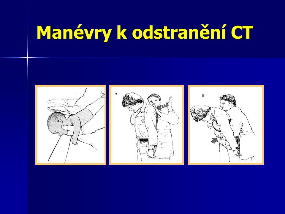 Manévry k odstranění CT
