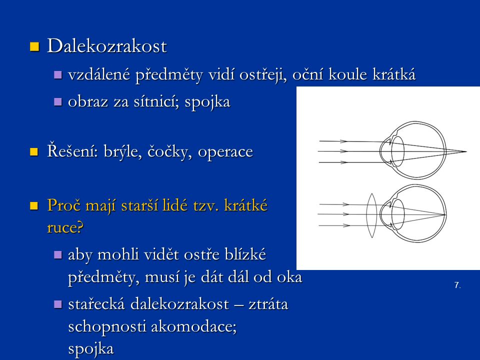 Dalekozrakost Dalekozrakost vzdálené předměty vidí ostřeji, oční koule krátká vzdálené předměty vidí ostřeji, oční koule krátká obraz za sítnicí; spojka obraz za sítnicí; spojka Řešení: brýle, čočky, operace Řešení: brýle, čočky, operace Proč mají starší lidé tzv.