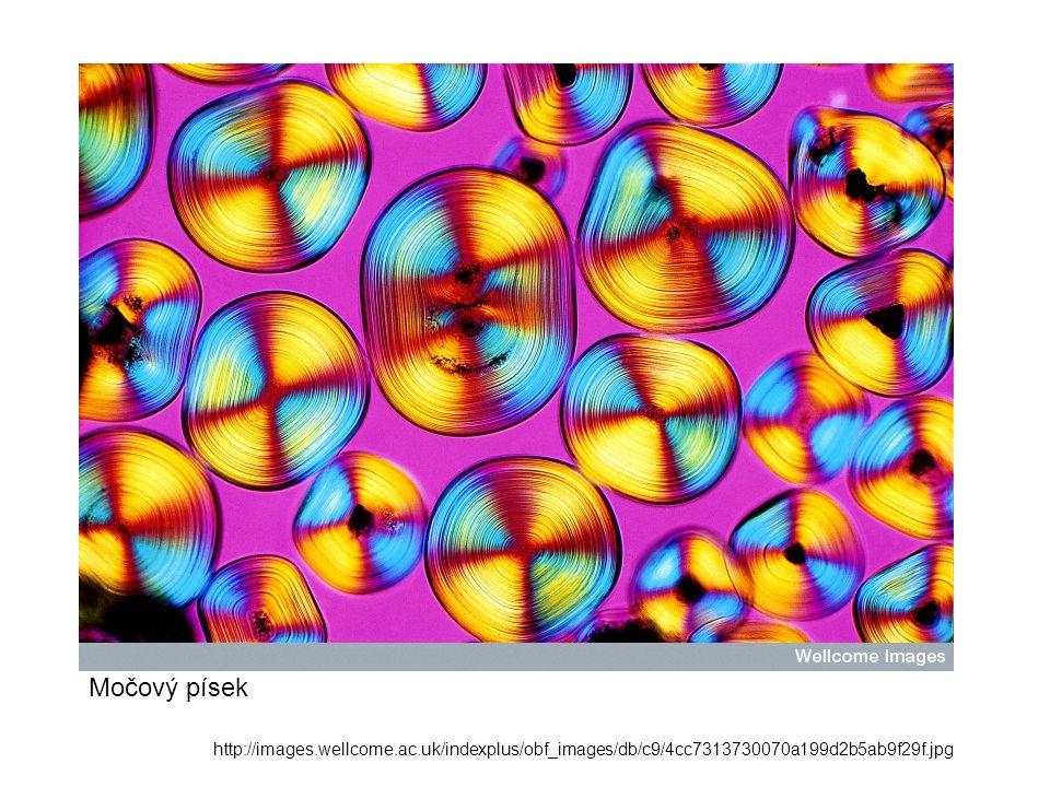 Př. využití v medicíně: http://images.wellcome.ac.uk/indexplus/obf_images/db/c9/4cc7313730070a199d2b5ab9f29f.jpg Močový písek