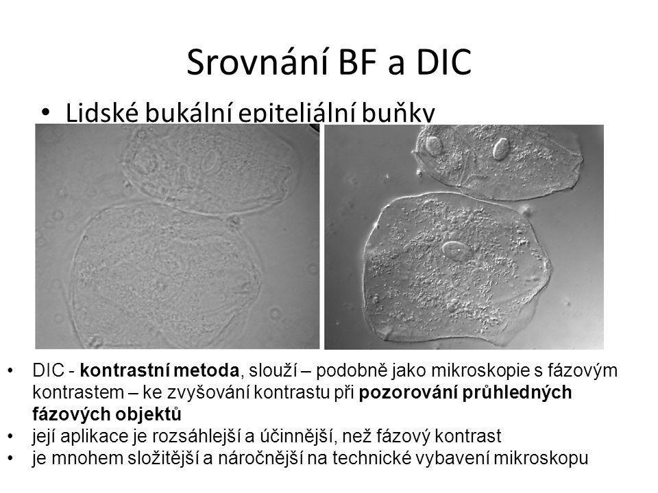Srovnání BF a DIC Lidské bukální epiteliální buňky DIC - kontrastní metoda, slouží – podobně jako mikroskopie s fázovým kontrastem – ke zvyšování kontrastu při pozorování průhledných fázových objektů její aplikace je rozsáhlejší a účinnější, než fázový kontrast je mnohem složitější a náročnější na technické vybavení mikroskopu