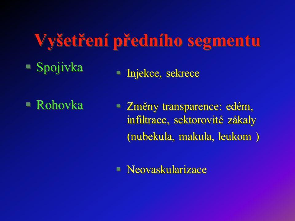 Vyšetření předního segmentu §Spojivka §Rohovka §Spojivka §Rohovka §Injekce, sekrece §Změny transparence: edém, infiltrace, sektorovité zákaly (nubekula, makula, leukom )  Neovaskularizace §Injekce, sekrece §Změny transparence: edém, infiltrace, sektorovité zákaly (nubekula, makula, leukom )  Neovaskularizace