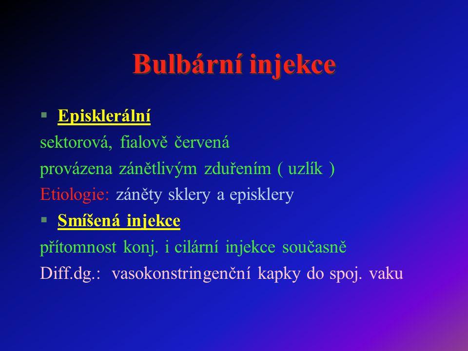 Bulbární injekce §Episklerální sektorová, fialově červená provázena zánětlivým zduřením ( uzlík ) Etiologie: záněty sklery a episklery §Smíšená injekce přítomnost konj.