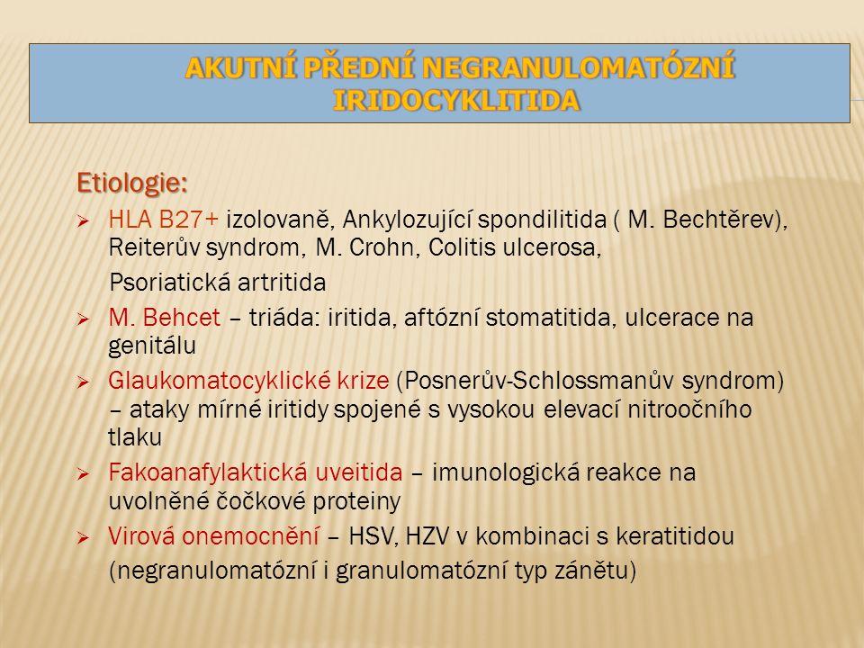 Etiologie:  HLA B27+ izolovaně, Ankylozující spondilitida ( M.