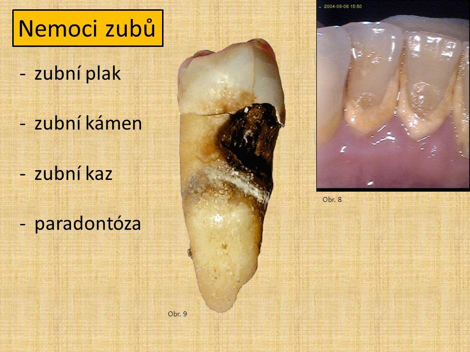 Nemoci zubů -zubní plak -zubní kámen -zubní kaz -paradontóza Obr. 8 Obr. 9