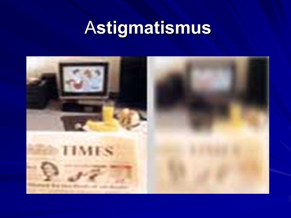 Astigmatismus Astigmatismus