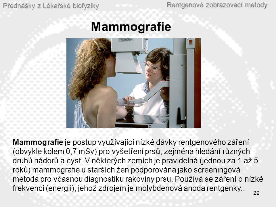 Přednášky z Lékařské biofyziky Rentgenové zobrazovací metody 29 Mammografie Mammografie je postup využívající nízké dávky rentgenového záření (obvykle kolem 0,7 mSv) pro vyšetření prsů, zejména hledání různých druhů nádorů a cyst.