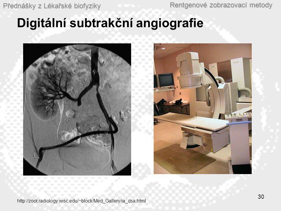 Přednášky z Lékařské biofyziky Rentgenové zobrazovací metody 30 Digitální subtrakční angiografie http://zoot.radiology.wisc.edu/~block/Med_Gallery/ia_dsa.html