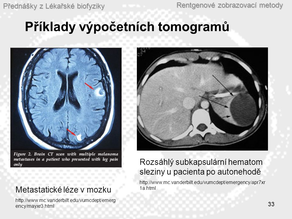 Přednášky z Lékařské biofyziky Rentgenové zobrazovací metody 33 Příklady výpočetních tomogramů Metastatické léze v mozku http://www.mc.vanderbilt.edu/