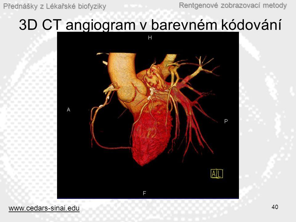 Přednášky z Lékařské biofyziky Rentgenové zobrazovací metody 40 3D CT angiogram v barevném kódování www.cedars-sinai.edu